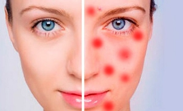 Воспаление кожи лица - Домашние маски для лица и волос 87